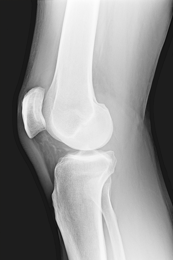 how to get fluid out of knee naturally