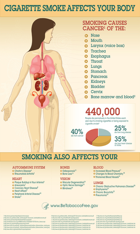 HHS_Tobacc_SmokingGraphic6