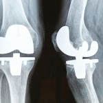 knee replacement xray